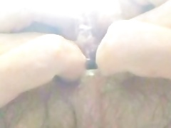 Anal stretching and prolapse